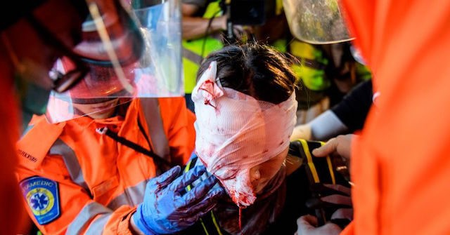 Police Violently Repress Protests in Hong Kong, Leaving Pools of Blood Throughout the City